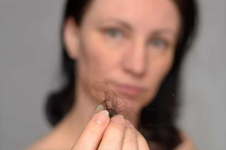 Mulheres com queda de cabelo