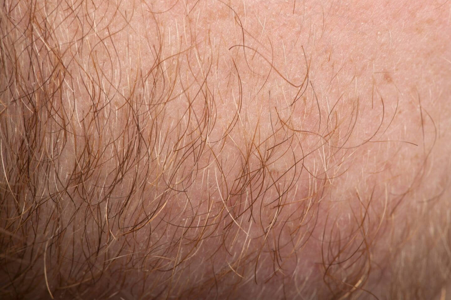Close-up-human skin-with-hair