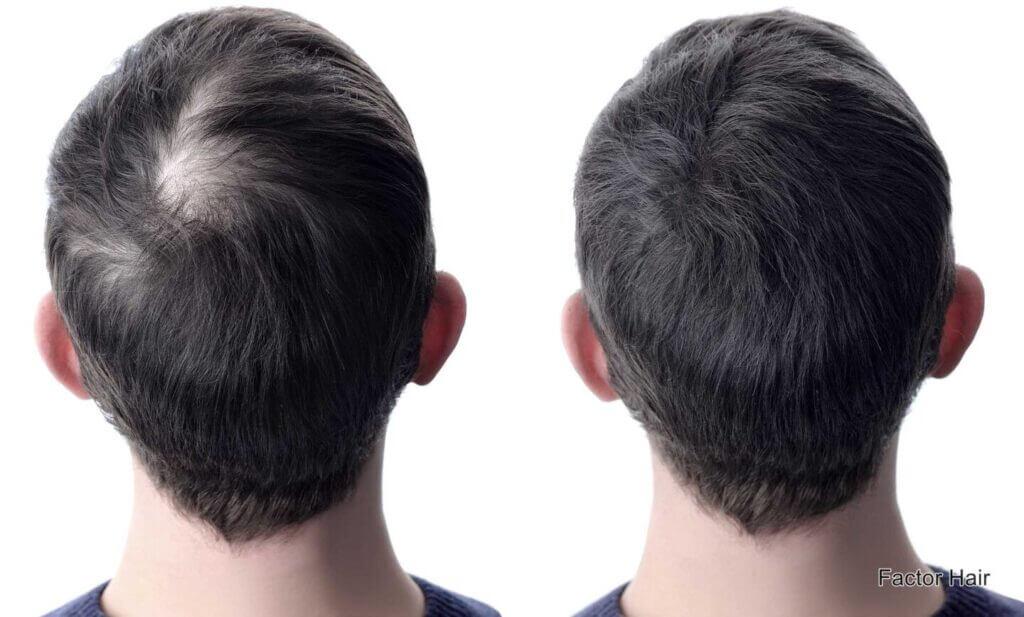 Chute de cheveux - ce qui aide vraiment