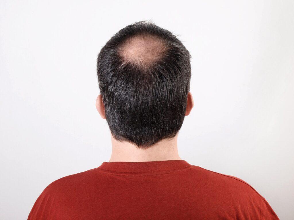 La perte de cheveux - qui aide vraiment. Homme aux cheveux clairsemés ou souffrant d'alopécie ou de chute de cheveux
