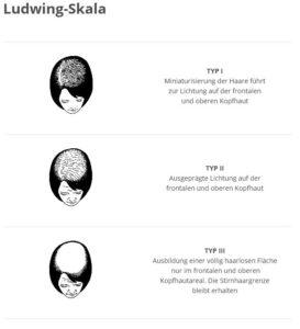 Chute de cheveux chez les femmes : la classification Ludwig