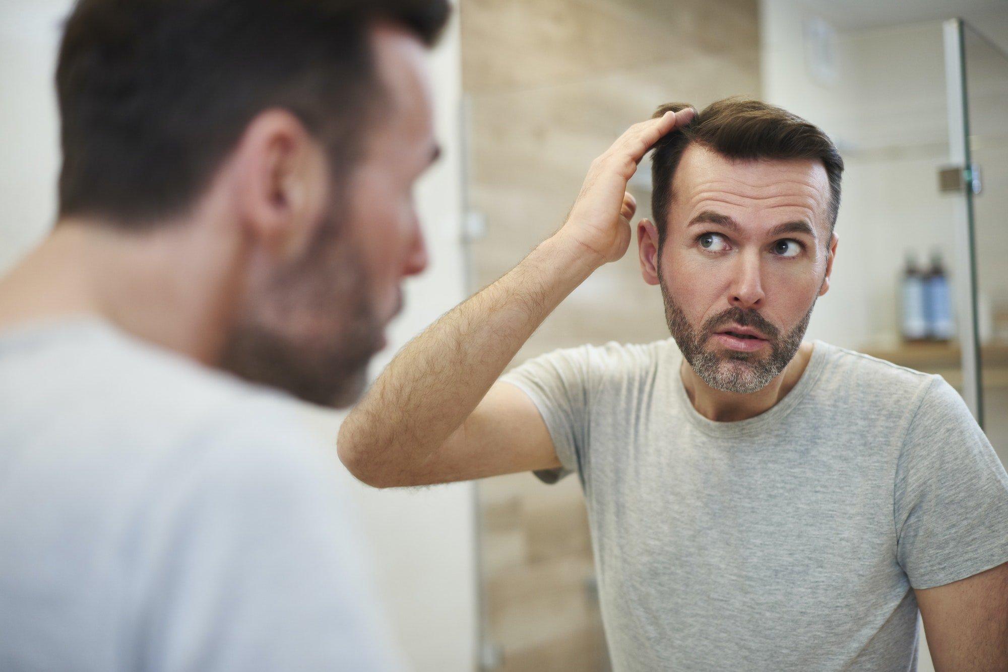 Os tipos mais comuns de queda de cabelo