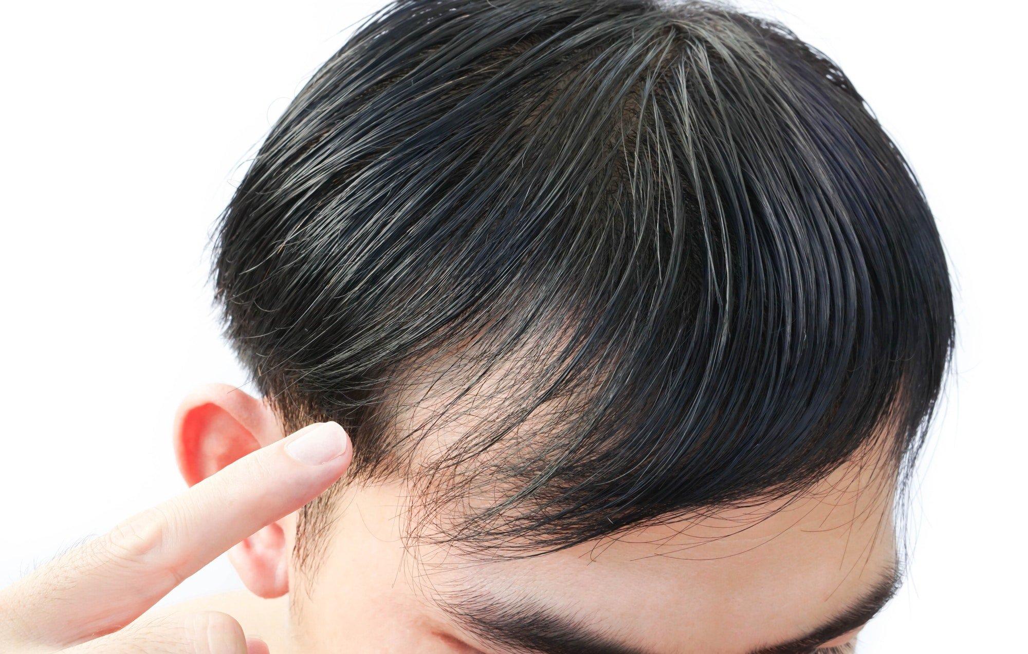 Queda de cabelo - eflúvio ou alopecia?