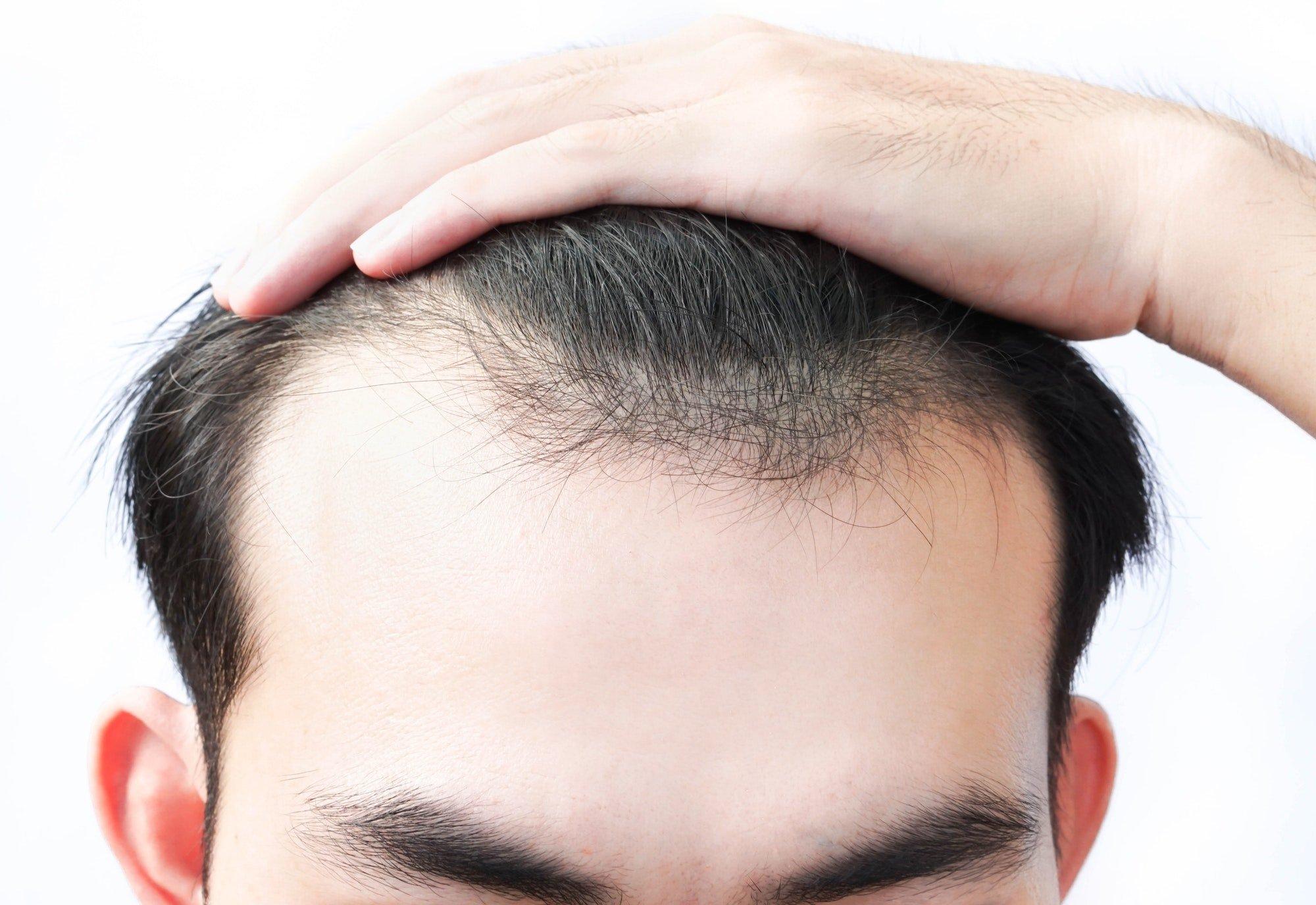 A minha luta contra a queda do cabelo